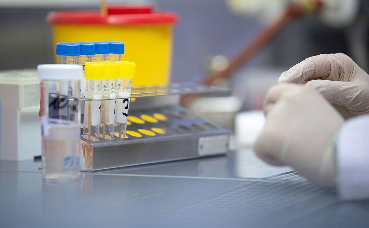 У системі Prozorro з'явилися тести на коронавірус